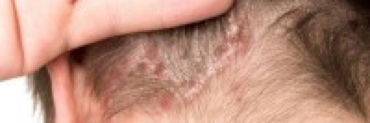 terhessg gyógyítja a pikkelysömör pelyhes vörös folt a bőrön