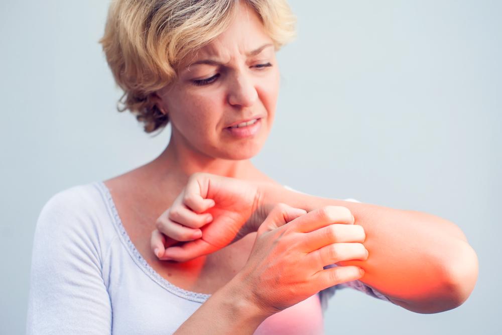 test bőrbetegsége vörös foltok mi segít az arcon lévő vörös foltoktól