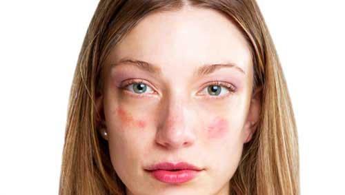 száraz vörös foltok az arcon hogyan lehet megszabadulni viszkető fej, vörös foltok és korpásodás