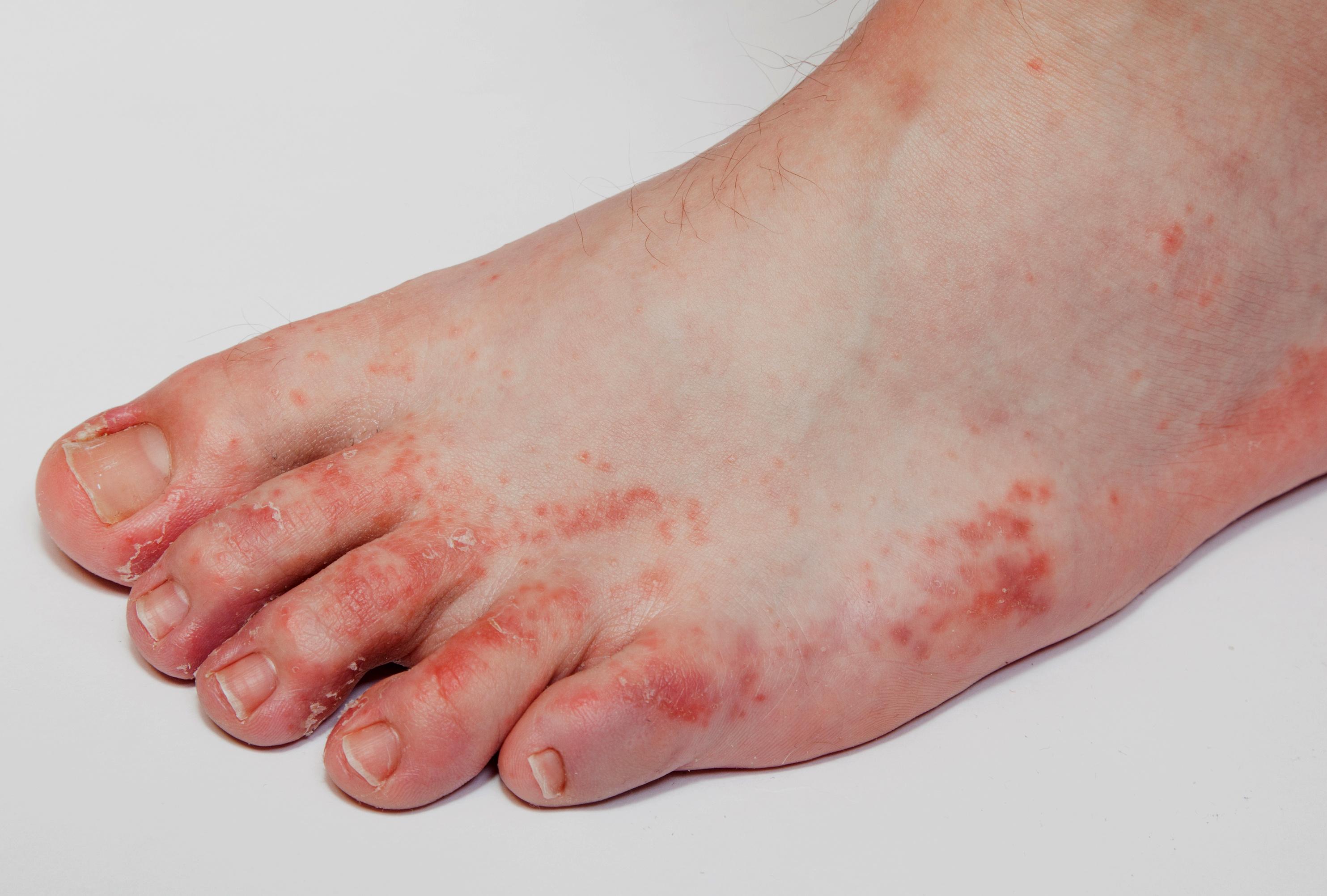 fertőzés a lábán vörös foltok bőrrák vörös foltok formájában