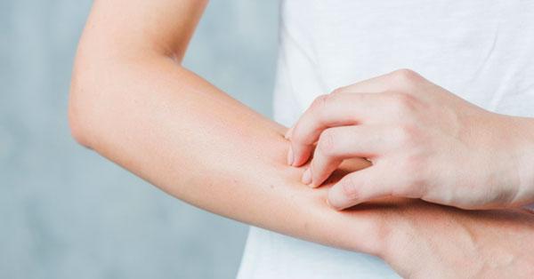 piros foltok kezek hasi nyak vörös foltok a szemhéjak kezelésén