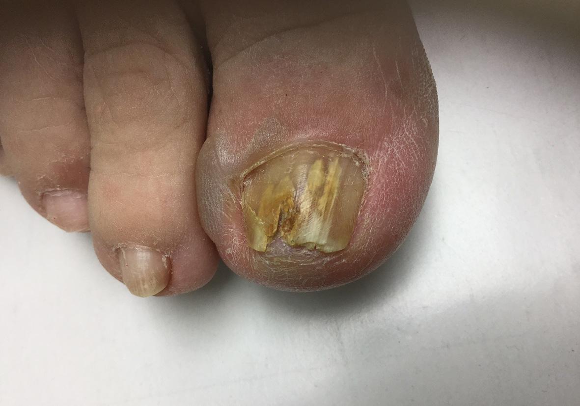 pikkelysömör és lábgomba kezelése vörös foltok jelentek meg a sípcsontokon