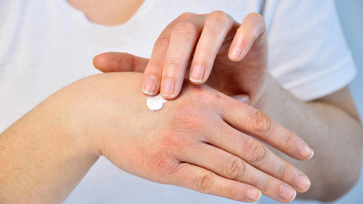 hogyan lehet meggyógyítani a pikkelysömör első jeleit vörös foltok a bőrön a hőtől