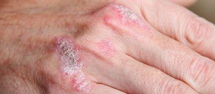 megszabadulni a pikkelysmr segt pikkelysömör a lábakon népi gyógymódokkal történő kezelés