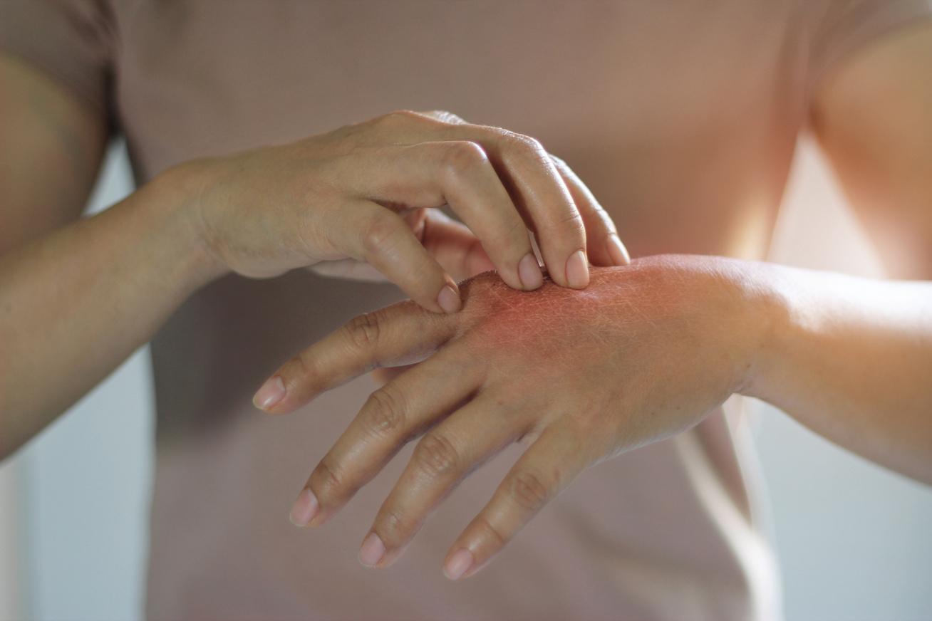 vörös folt viszket az ujjak között
