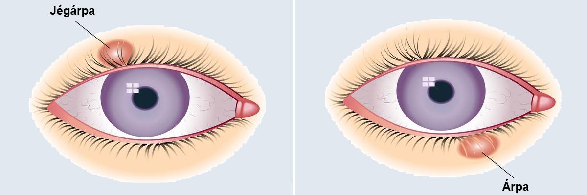 hogyan kell kezelni a szemhéj vörös foltját akut pikkelysömör kezelése