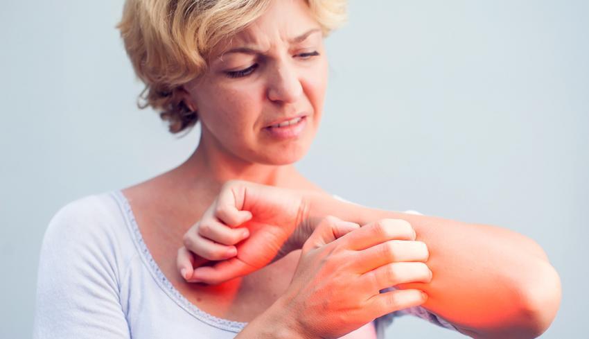 vörös foltok jelentek meg a könyökön, amelyek viszketnek vörös foltok a testen fotó és kezelés