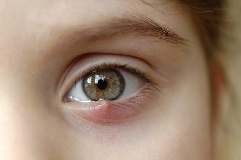 a szemhéjon egy piros folt viszket és pelyhezik
