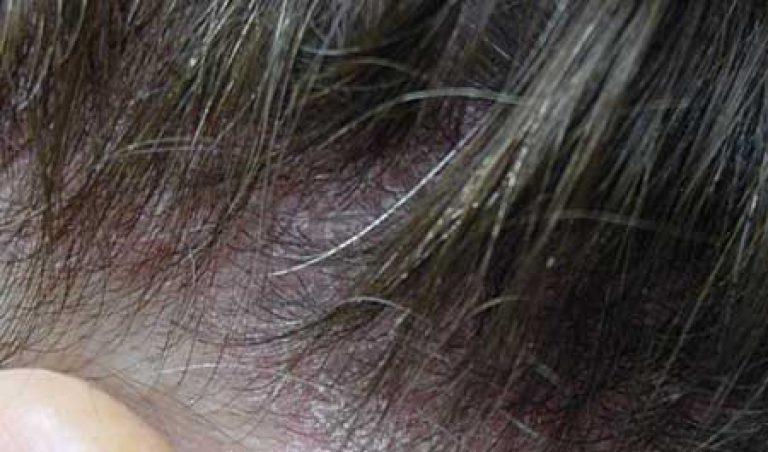 A kenőcsök, krémek és gélek a dermatitis helyi kezelésére vonatkoznak. - Típusok November