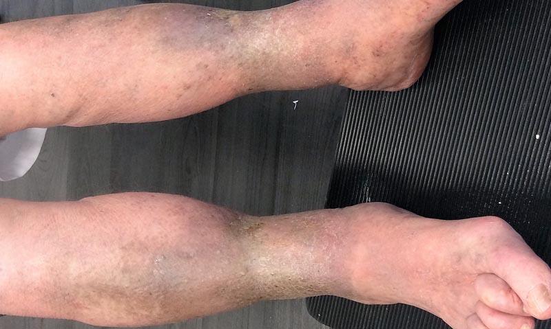 vörös pikkelyes viszkető foltok az arcon vörös foltok jelentek meg a lábakon és zúzódásként fájtak