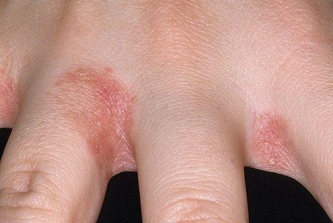 vörös foltok hámozzák a bőrt az ujjakon vörös foltok megjelenése a testen hogyan kell kezelni