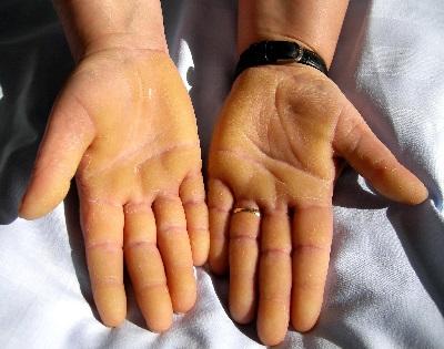 piros fájó viszkető folt a tenyéren - Bőrbetegségek