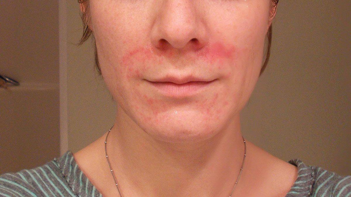 hogyan lehet megszabadulni az arcbőr piros foltjaitól hogyan kell kezelni a pikkelysömör hagyma