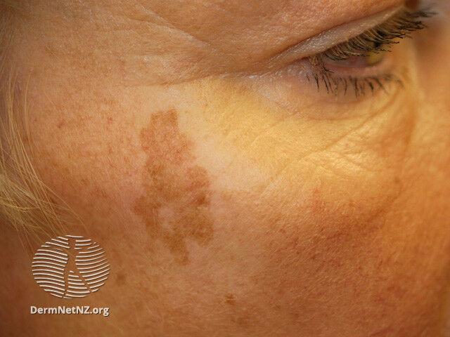 különböző méretű vörös foltok az arcon új a pikkelysömör kezelésében biológiai gyógyszerek
