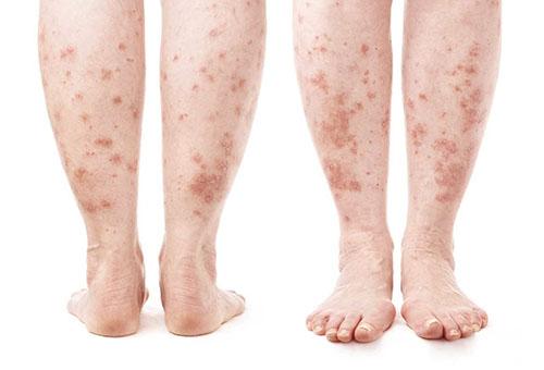 vörös foltokkal borított lábak és karok