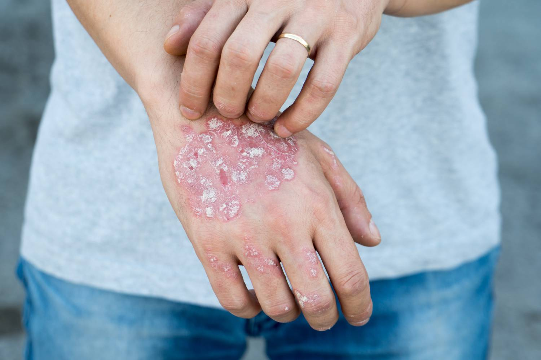 pikkelysömör kezelése Amerikában a pikkelysmr kezelsekor inni lehet