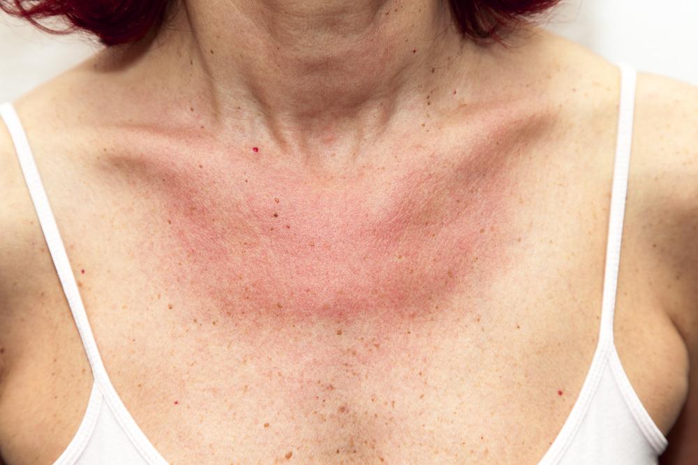 vörös foltok a nyakfotó bőrén