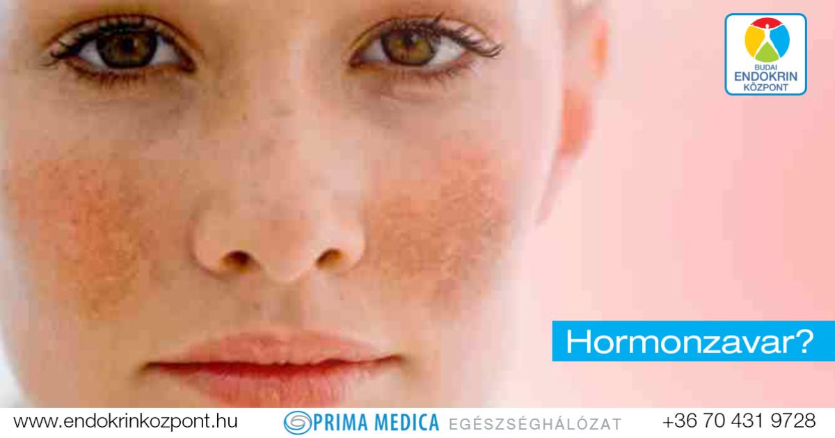 vörös foltok az arcon demodikózissal plakkos pikkelysömör kezelése kenőcsökkel