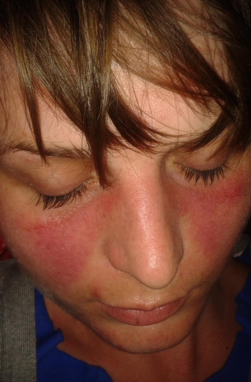 foltok az arcon piros fotó gyógyítja a pikkelysömör ásványvizekkel