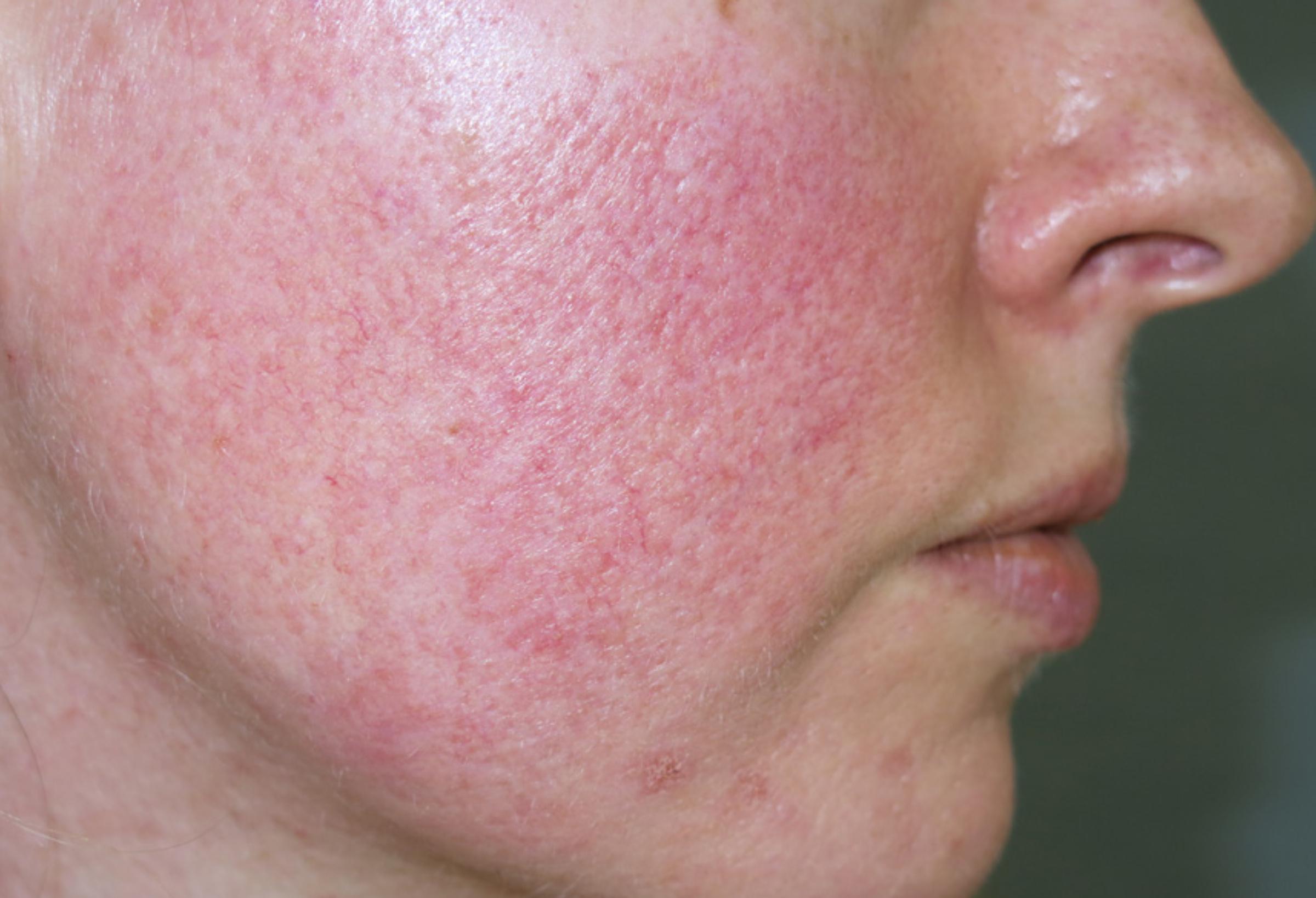 hogyan lehet megszabadulni az arcbőr piros foltjaitól a bőrön egy piros peremű folt fáj