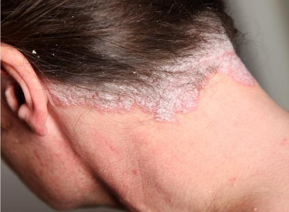 krém pikkelysömörhöz a fej külső használatra