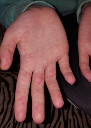 nagymama kezén piros foltok vannak