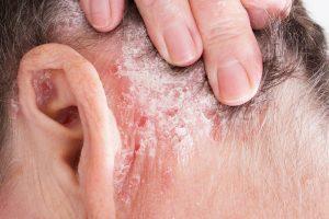 Bőrbetegségek ősszel (ekcéma, övsömör, pikkelysömör)