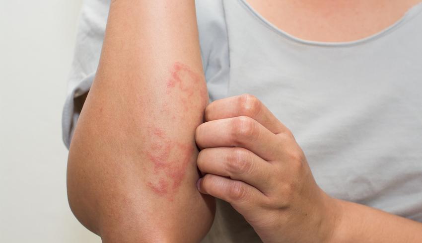a bőr hámlik és viszket a testen vörös foltok egészséges krém viasz pikkelysömörről vélemények