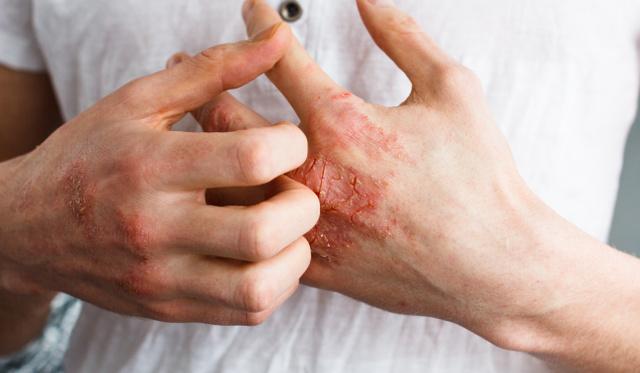 pikkelysömör kezelése kmv-ben kerek piros foltok a bőrön viszket, mi ez