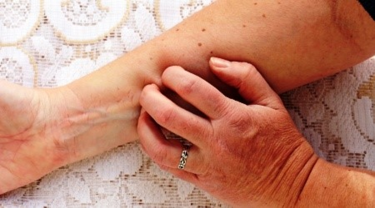 is plaque psoriasis hereditary