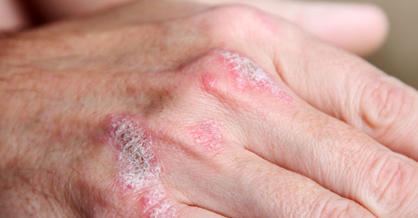 vörös foltok a szem felett, viszketnek és pelyhesek radon pikkelysömör kezelése