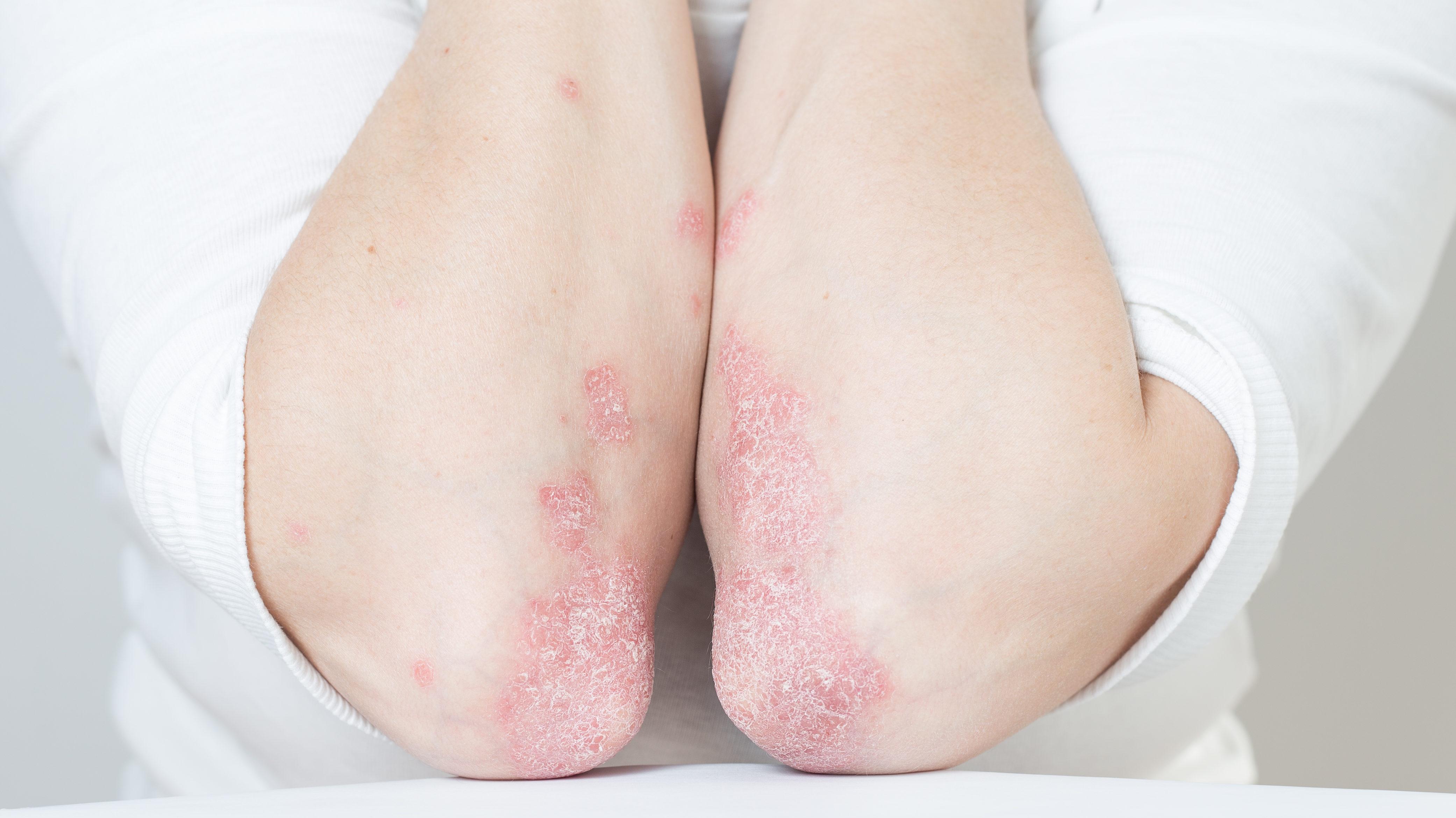 a pikkelysömör kezelésének hagyományos módszerei a pikkelysmr kezelsnek tpusai