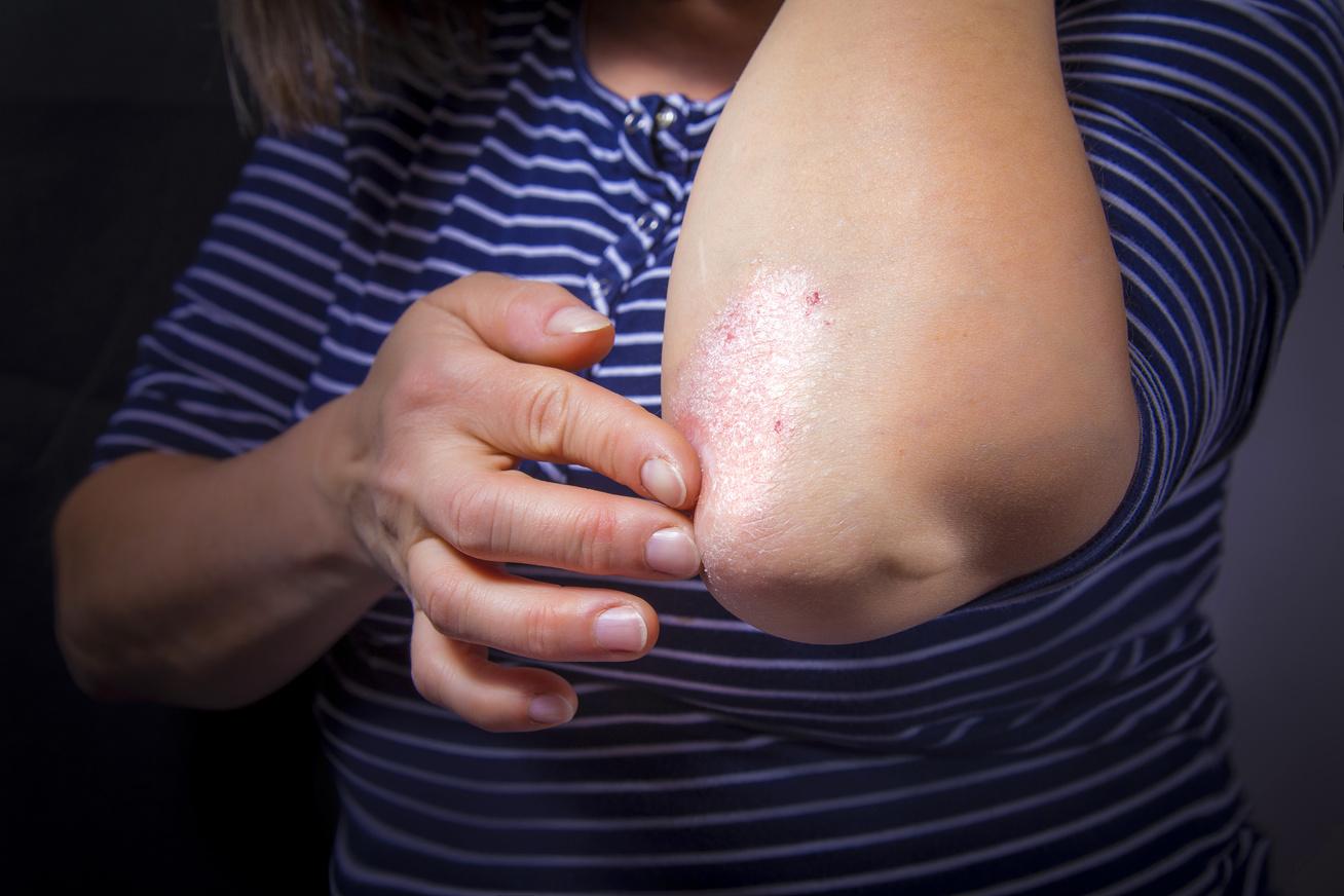 a bőrön lévő vörös foltok eltűnnek immunobiológiai gyógyszerek pikkelysömör kezelésére