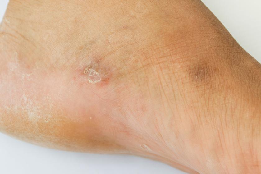 a lábán a vörös folt hámlik egy vörös folt a bőrön hólyagokkal
