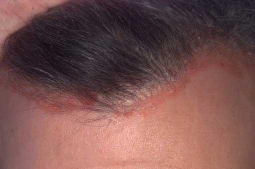 pikkelysömör az arcon kezelsi mdszer vörös nem gyógyuló foltok a bőrön