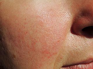a bőr alatt az arcon vörös foltok