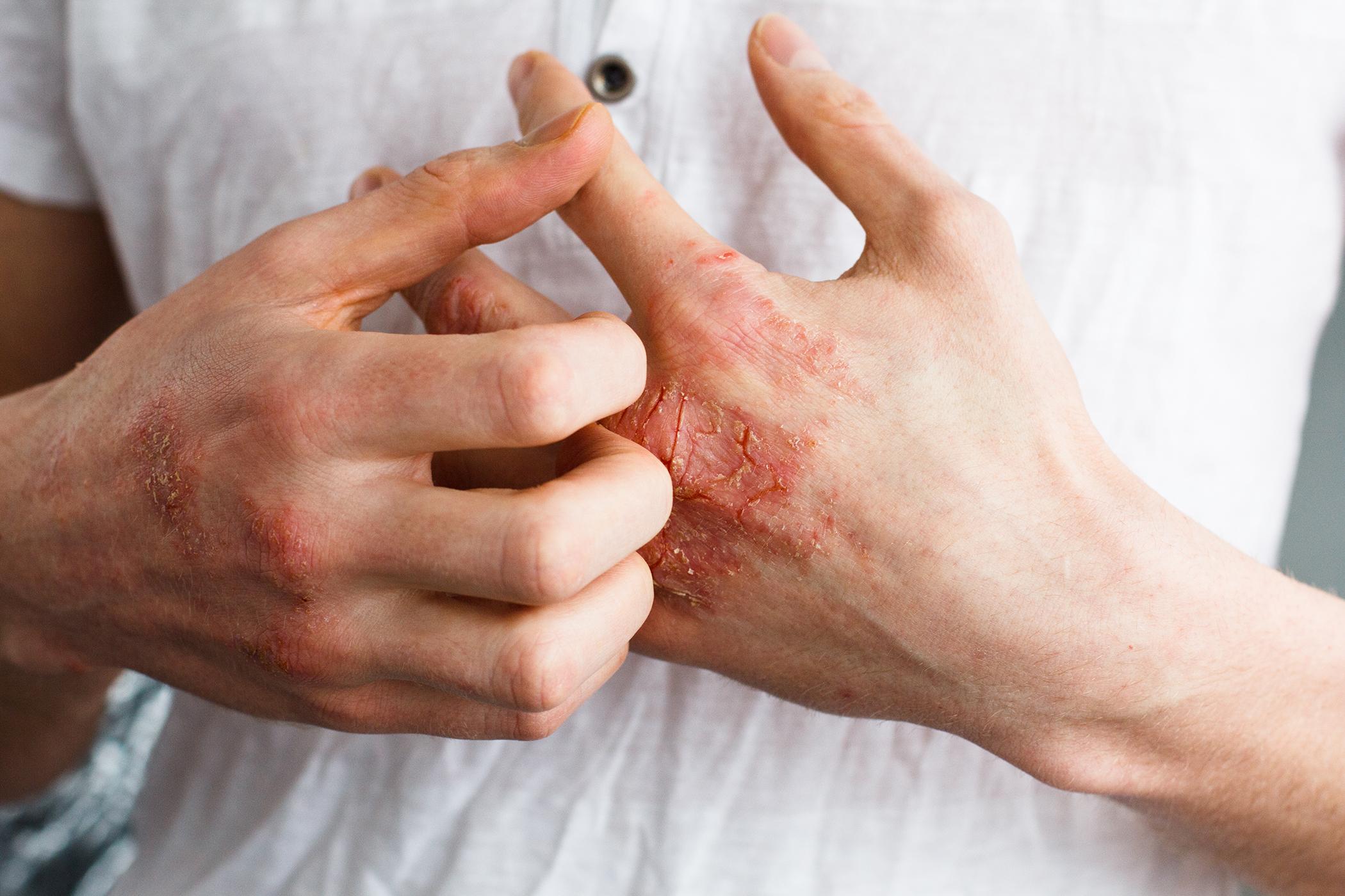 a bőrt vörös foltok borítják, és viszket az egész a borda bőrén vörös folt található
