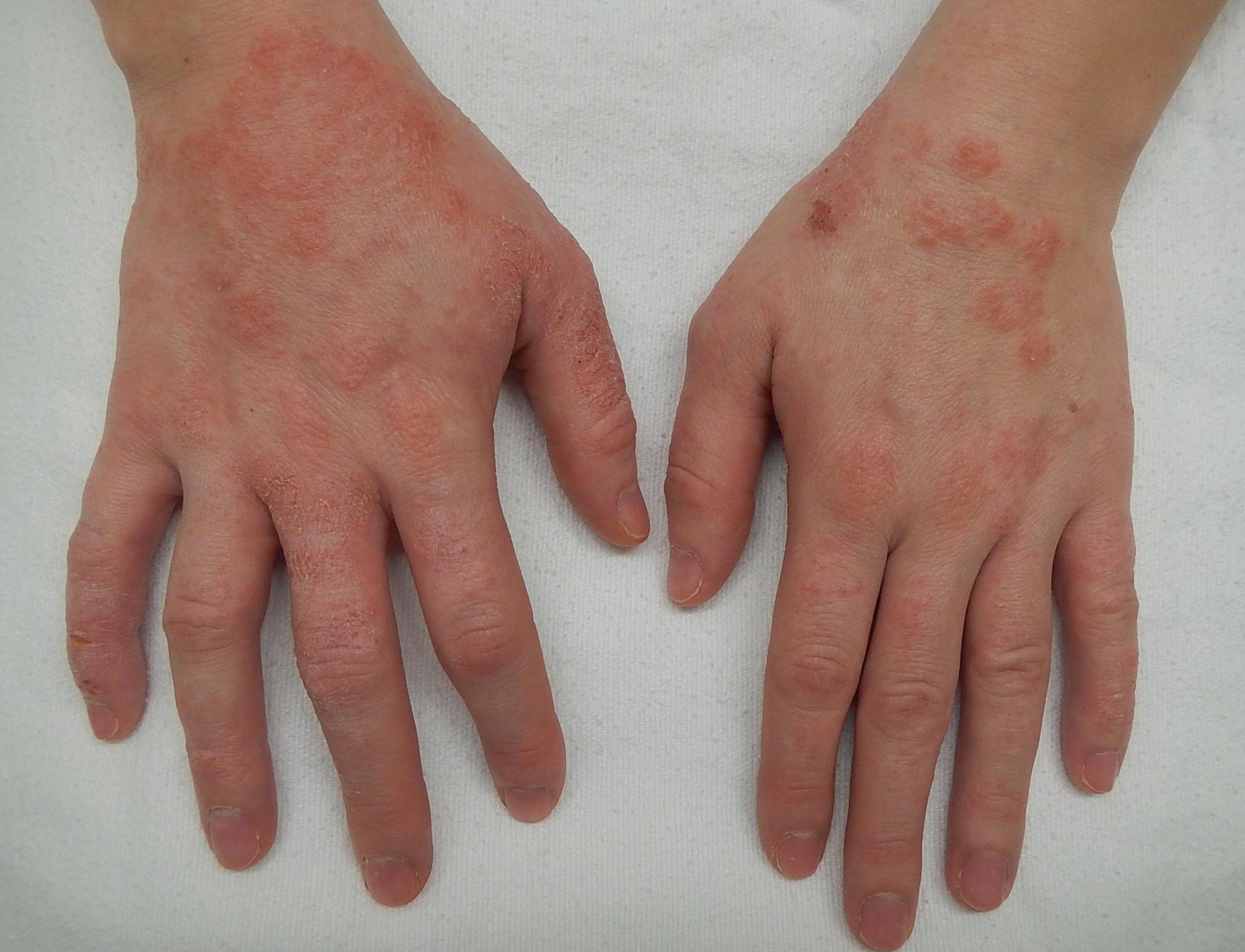 vörös foltok az ujjak között és viszketőek