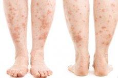 Pont a lábán: vörös folt a lábán, fénykép, okok - Fekély