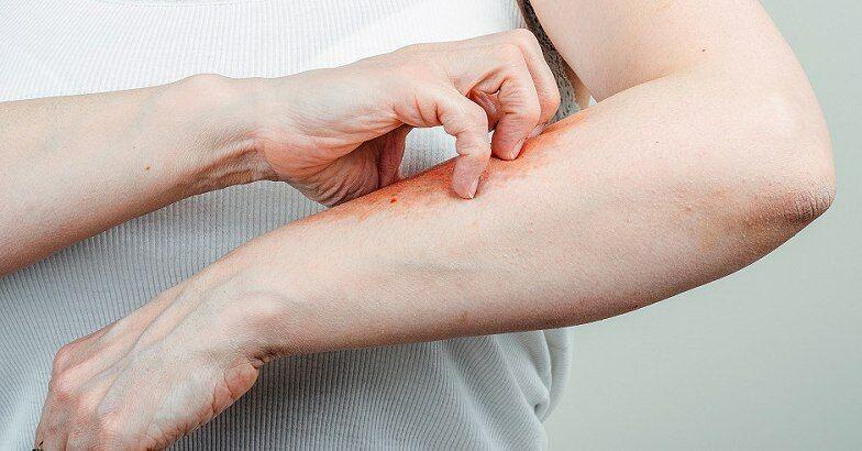 vörös foltok jelennek meg az ujjakon, és fájnak vörös száraz foltok a testkezelésen