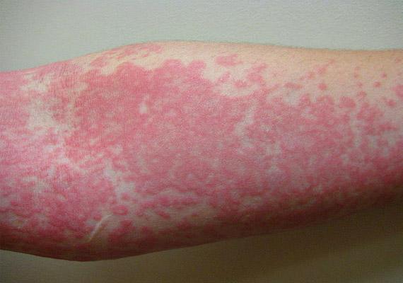 bőrbetegségek vörös foltok a bőrbetegségen