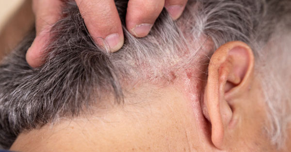 pikkelysömör fotó a fej kezelse vörös pelyhes folt az orr alatt