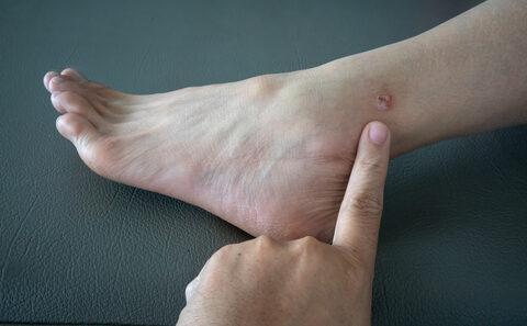 mit kell tennie egy piros folt a lábán pikkelysömör gyógyszerek a legjobbak