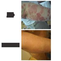 Volga régió központja pikkelysömör és vitiligo kezelésére vörös foltok a szájpadon felnőttek kezelésében