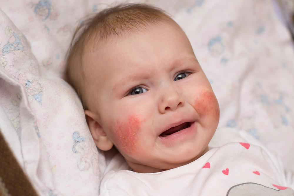 vörös foltokkal borított arc és kéz