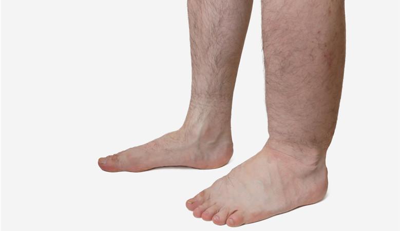 vörös folt a férfiak között a lábak között pikkelysömör okoz kezelst