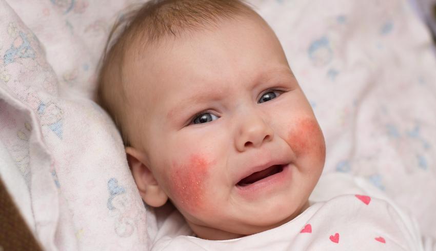 vörös foltok jelentek meg az arcán, amelyek viszketnek