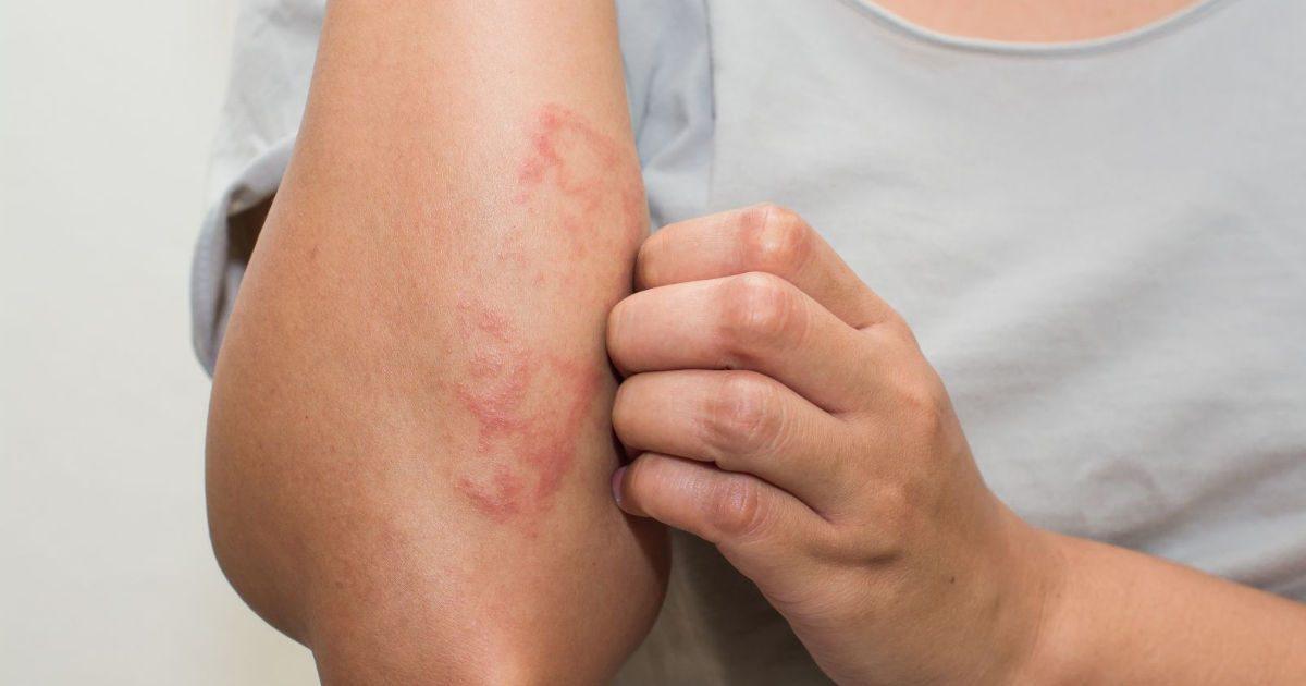 hónalj alatt vörös foltok viszketnek Magyar kezels a pikkelysmr kezelsre