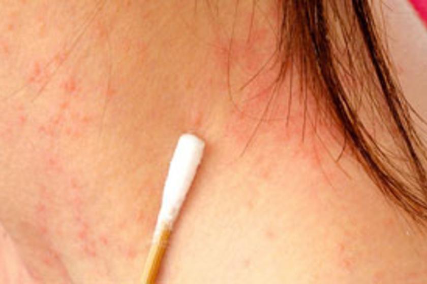 vörös foltok az arcon és a testen viszketéssel libazsír pikkelysömör kezelése