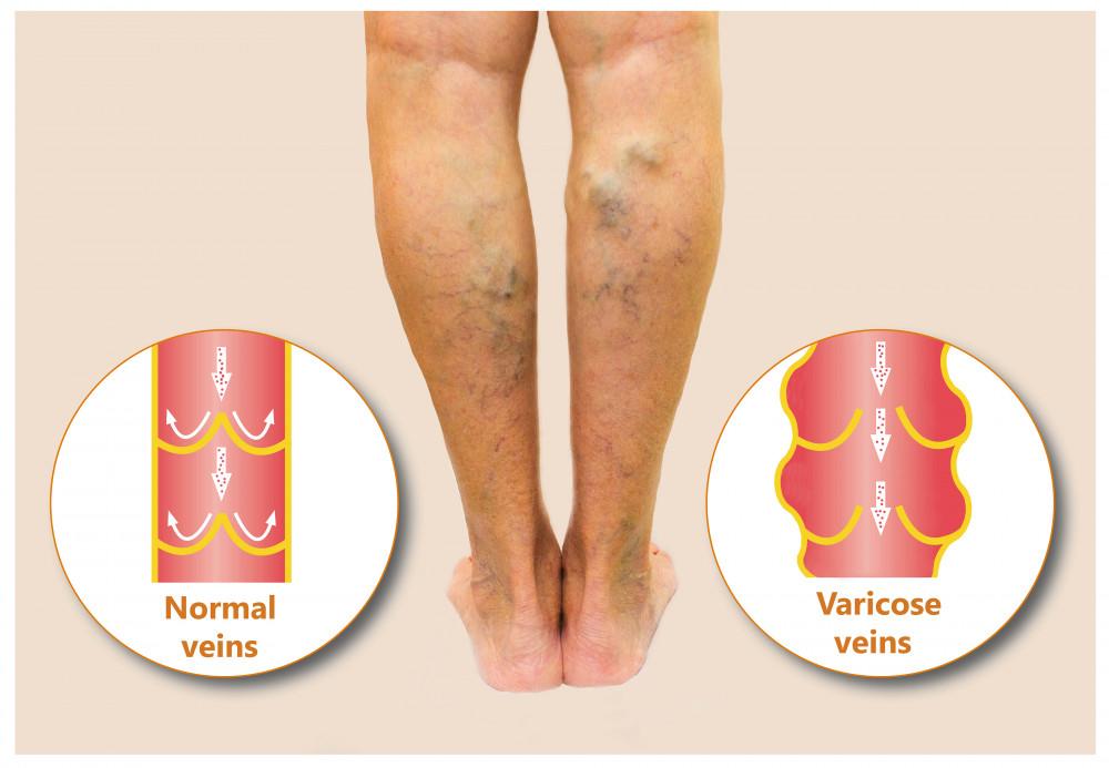 fáj a lábán egy piros folt vörös folt az arcon hámlasztó kezelés